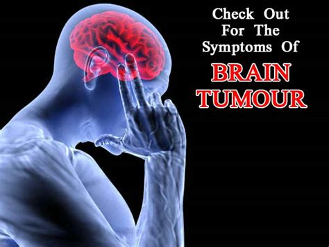 10 Common Symptoms of Brain Tumour You Need To Know  World ...