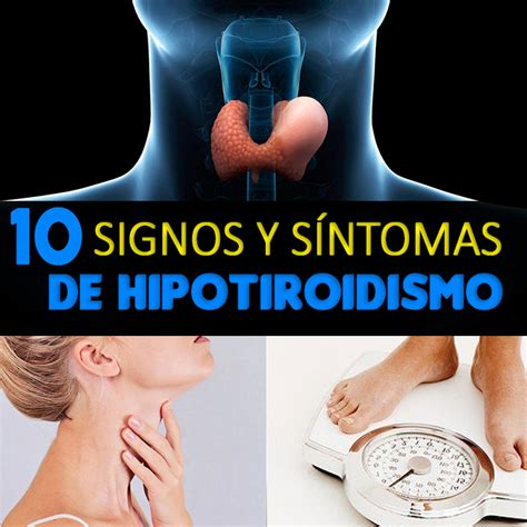 10 Signos Y Síntomas Del Hipotiroidismo   La Guía de las ...