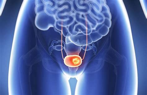 10 síntomas de cáncer de vejiga que cada mujer necesita saber