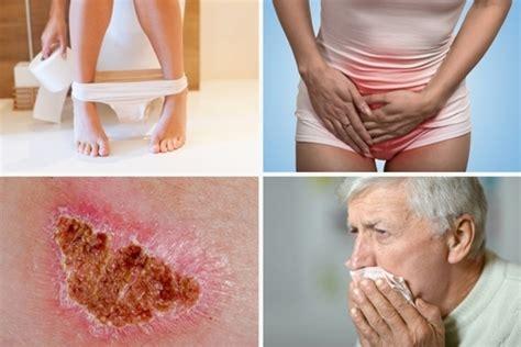 12 sintomas que podem indicar câncer   Tua Saúde