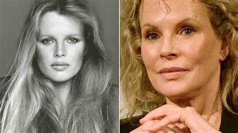 15 famosos en fotos antes y después de someterse a ...