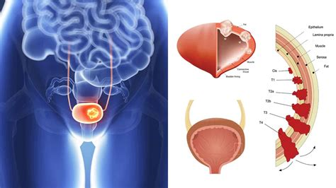 15 Hidden Signs of Bladder Cancer to Never Ignore