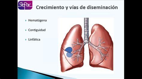 17 01 2017  El cáncer de pulmón, desde el diagnóstico ...