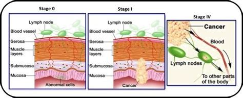 2: Various stages of Colon cancer. Stage  0  Presence of ...