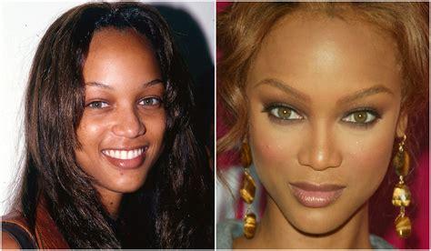20 Celebridades antes y después de operarse la nariz