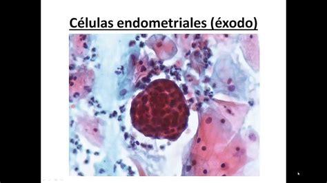 3. Citología cérvico vaginal normal  citología de cribado ...