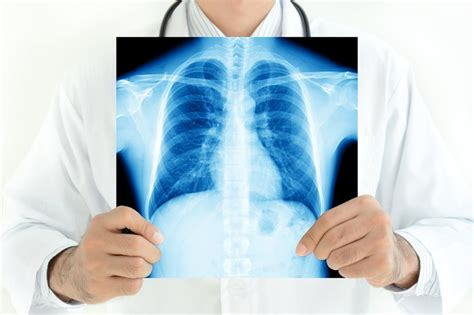3 Lung Cancer Stocks That Could End September on a High ...