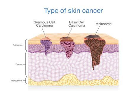 3 Types of Skin Cancer: Surprising Causes of Melanoma ...
