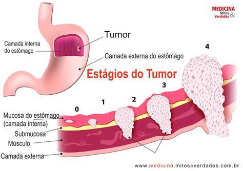 377 causas do cancer de estomago   Fisiologia Humana