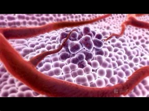 3D Medical Animation   What is Cancer?   YouTube