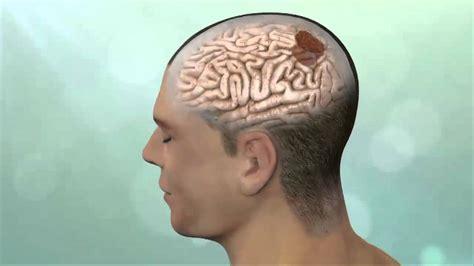 4 síntomas le podrían anunciar un tumor cerebral   YouTube