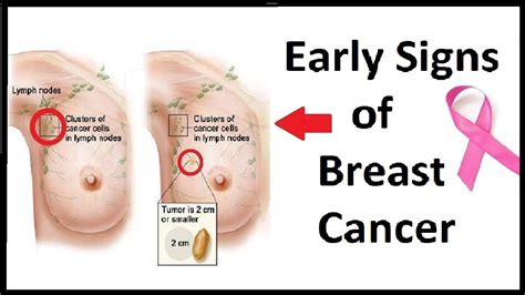 5 Early Signs Of Breast Cancer That Many Women Ignore ...