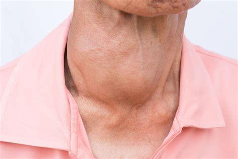 5 síntomas de que padeces hipertiroidismo   Vida Lúcida