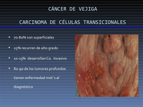 6 cancer vejiga LUIS GABRIEL PEREZ SANTOS