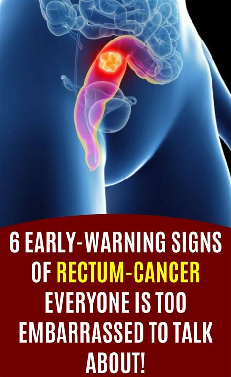 6 early warning signs of rectum cancer everyone is too ...