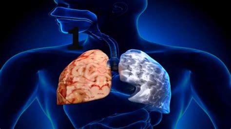 6 Remedios caseros para la enfermedad pulmonar obstructiva ...