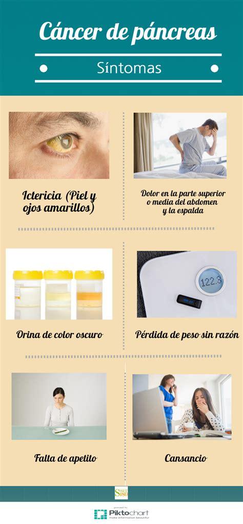 6 señales de que tienes cáncer de páncreas | Salud180