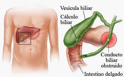 6 síntomas de una vesícula biliar afectada | Salud ...