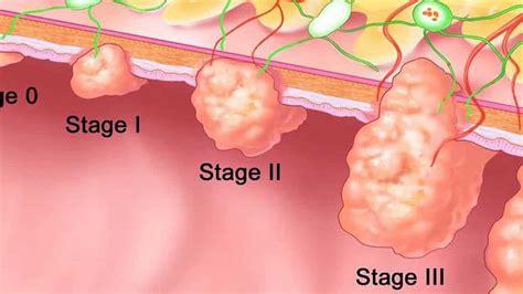 7 claves sobre los pólipos en el colon y el cáncer