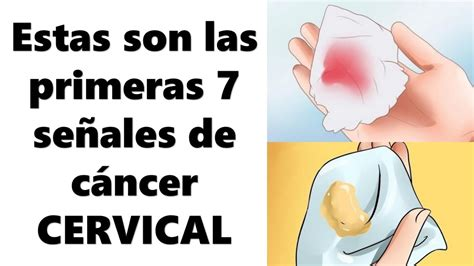 7 señales de cáncer CERVICAL. No lo Ignores.!!   YouTube