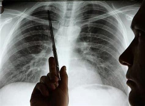 7 señales de cáncer de pulmón que no debes ignorar
