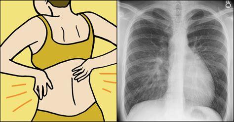 7 signos pocos probables del cáncer de pulmón ...