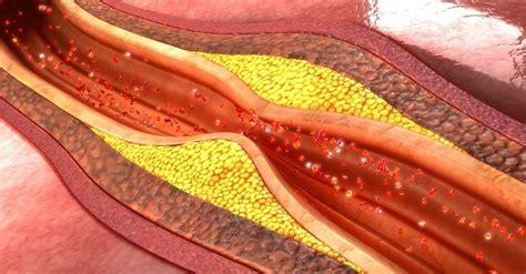 8 alimentos para destapar las arterias | Bioguia