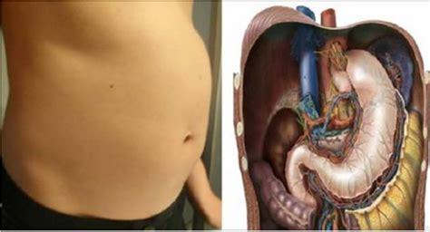 8 causas del estómago hinchado y remedios naturales