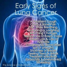 8 Early Warning Signs of Lung Cancer You Should Not Ignore ...