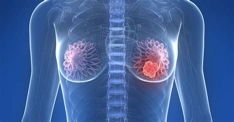 8 sintomas de câncer de mama que vão muito além do nódulo