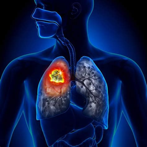 8 síntomas del cáncer de pulmón que puedes detectar ...