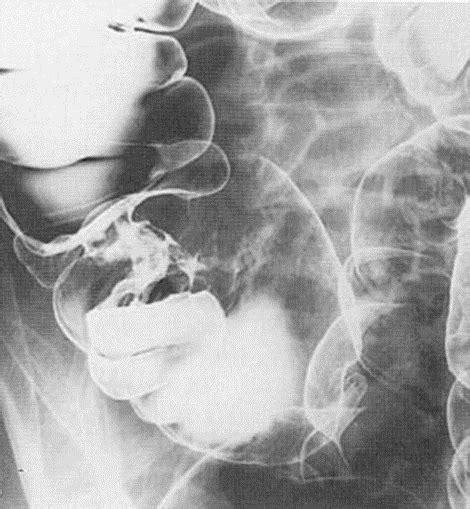 9.5B. Imagen radiologica de cancer de colon puesto en ...