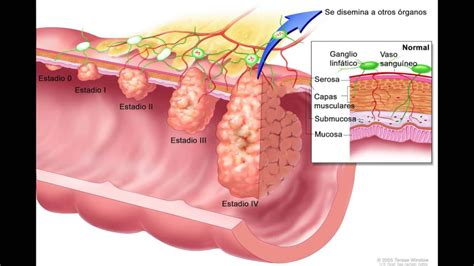 9 de cada 10 casos de cáncer de colon se curan si se ...