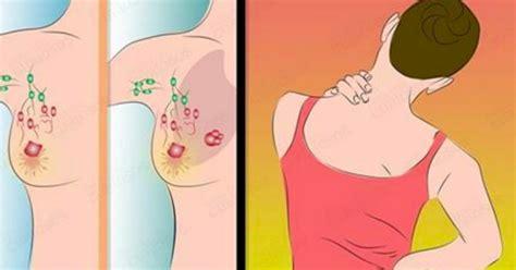 9 sinais COMUNS de câncer de mama que a maioria das ...