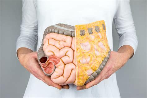9 sintomas do câncer de cólon e reto   Oncologista em ...