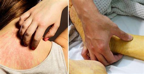 9 síntomas que pueden indicar cáncer de páncreas. ¿Sientes ...