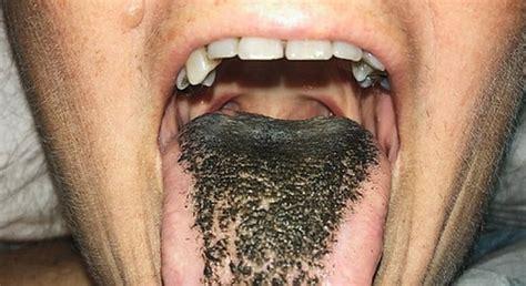 A estranha doença conhecida como língua  peluda ...