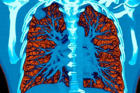 A.I. Took a Test to Detect Lung Cancer. It Got an A.   The ...