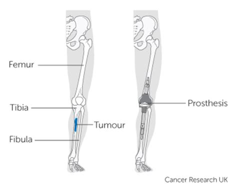 About surgery for bone cancer | Cancer Research UK