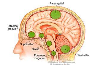 Acoustic Neuroma: Common Symptoms of Benign Brain Tumor