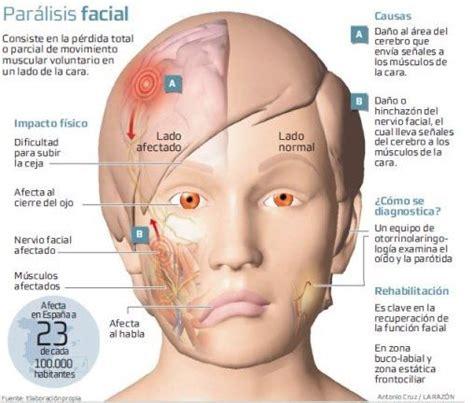 Acupuntura para la parálisis facial La...   Consultorio de ...