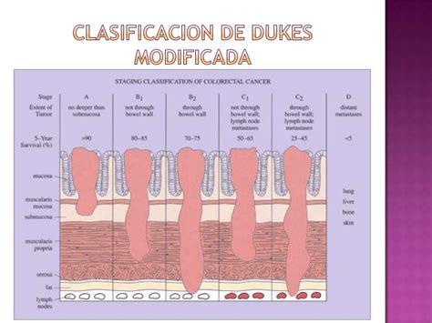 Adenocarcinoma De Colon Estadios   SEONegativo.com
