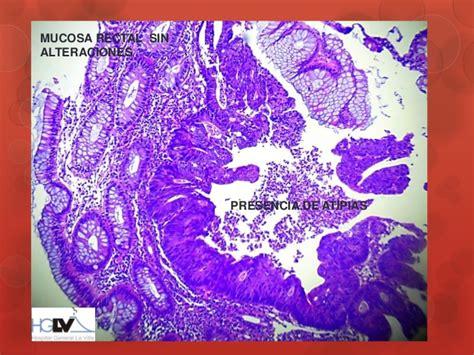 Adenocarcinoma de recto. Presentación de un caso