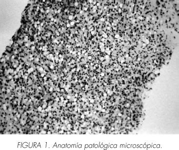 Adenocarcinoma vesical de células en anillo de sello ...