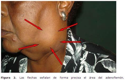 Adenoflemón cervical en la tercera edad. Presentación de ...