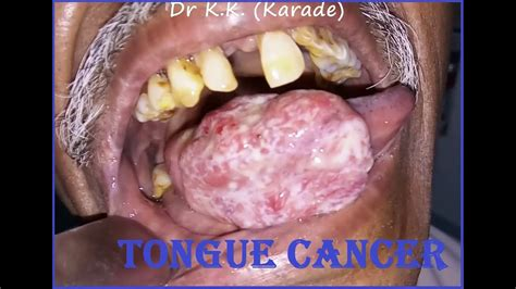 Advanced Stage Oral Cavity Carcinoma : Ca Tongue ...