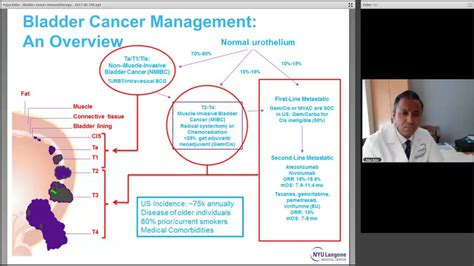 Advances in Bladder Cancer Immunotherapy, with Dr. Arjun ...