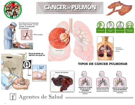 Agentes de Salud: Cáncer de Pulmón