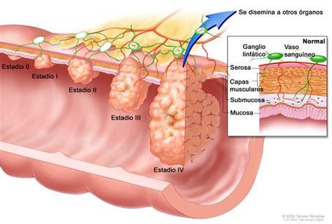 Alberdi Apartado Digestivo   POSE, Obesidad, Cáncer de ...