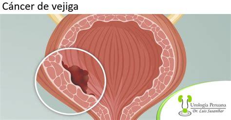 Alcances de la cirugía para el cáncer de vejiga